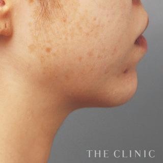 THE CLINIC(ザ・クリニック)東京院の顔のベイザー脂肪吸引の症例写真(ビフォー)