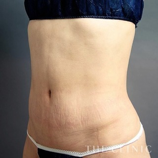 THE CLINIC(ザ・クリニック)福岡院のお腹のベイザー脂肪吸引の症例写真(アフター)