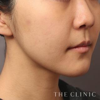 THE CLINIC(ザ・クリニック)東京院の顔のベイザー脂肪吸引の症例写真(アフター)