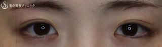 聖心美容クリニック横浜院の【20代女性・目を大きく柔らかな印象に】目頭切開(1ヶ月後)の症例写真(ビフォー)