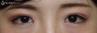 聖心美容クリニック横浜院の【20代女性・目を大きく柔らかな印象に】目頭切開(1ヶ月後)の症例写真(アフター)