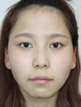 ザ・プラス美容外科の顔面輪郭(頬骨縮小、エラ削り、顎削り)、脂肪移植(フルフェイス)の症例写真(ビフォー)