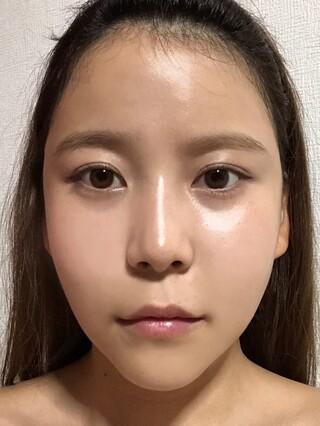 ザ・プラス美容外科の顔面輪郭(頬骨縮小、エラ削り、顎削り)、脂肪移植(フルフェイス)の症例写真(アフター)