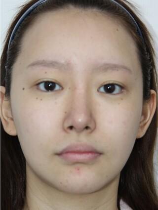 ザ・プラス美容外科の顔面輪郭手術(顎削り、ミニV)、貴族手術、脂肪移植(フルフェイス)の症例写真(ビフォー)