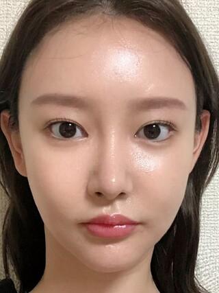 ザ・プラス美容外科の顔面輪郭手術(顎削り、ミニV)、貴族手術、脂肪移植(フルフェイス)の症例写真(アフター)