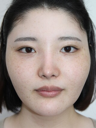 ザ・プラス美容外科の顔面輪郭(頬骨縮小)、脂肪移植(フルフェイス)、顎ボトックスの症例写真(ビフォー)