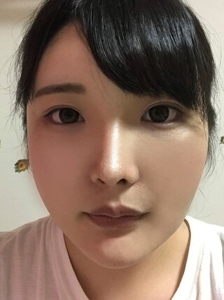 ザ・プラス美容外科の顔面輪郭(頬骨縮小)、脂肪移植(フルフェイス)、顎ボトックスの症例写真(アフター)