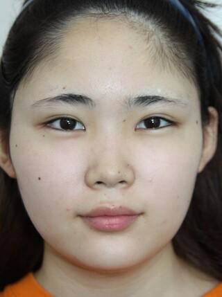ザ・プラス美容外科の顔面輪郭(頬骨縮小術)の症例写真(ビフォー)