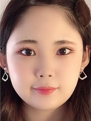 ザ・プラス美容外科の顔面輪郭(頬骨縮小術)の症例写真(アフター)