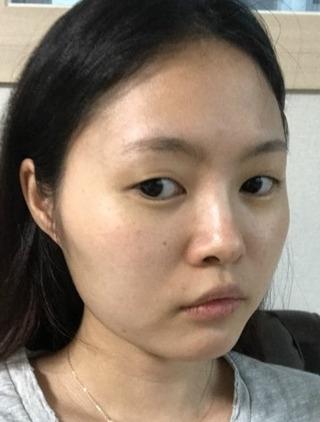 バノバギ整形外科の輪郭3点(エラ、頬骨、前顎)、鼻(鼻先、鼻筋、歪み鼻矯正)、目(非切開つき矯正)、唇フィラーの症例写真(ビフォー)