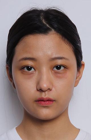 バノバギ整形外科の輪郭3点(頬骨、前顎、エラ)、鼻(鼻先、鼻筋、鷲鼻)、目の下脂肪再配置、脂肪移植(額)の症例写真(ビフォー)