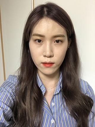 NANA美容外科の二重・鼻・輪郭Vライン・顔脂肪移植・バック豊胸の症例写真(ビフォー)