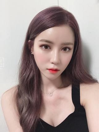 NANA美容外科の二重・鼻・輪郭Vライン・顔脂肪移植・バック豊胸の症例写真(アフター)