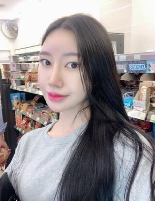 NANA美容外科の二重・デュアル切開・鼻・輪郭3点の症例写真(アフター)