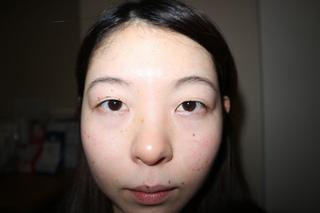 麹町皮ふ科・形成外科クリニックの埋没法(2点留め)の症例写真(ビフォー)