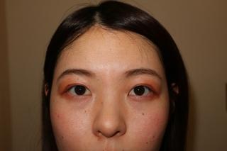 麹町皮ふ科・形成外科クリニックの埋没法(2点留め)の症例写真(アフター)