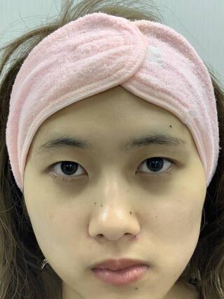 麹町皮ふ科・形成外科クリニックの二重埋没法の症例写真(ビフォー)