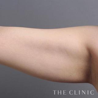 THE CLINIC(ザ・クリニック)東京院の二の腕のベイザー脂肪吸引の症例写真(ビフォー)