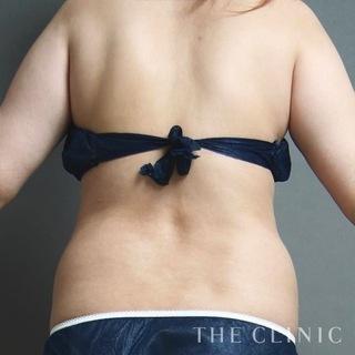 THE CLINIC(ザ・クリニック)東京院の腰のベイザー脂肪吸引の症例写真(ビフォー)
