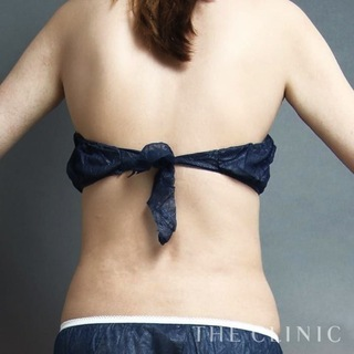 THE CLINIC(ザ・クリニック)東京院の腰のベイザー脂肪吸引の症例写真(アフター)