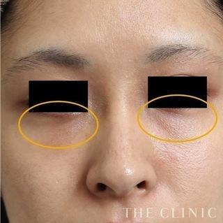 THE CLINIC(ザ・クリニック)名古屋院の目の下の脂肪注入(マイクロCRF注入)の症例写真(アフター)