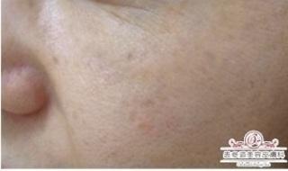 表参道美容皮膚科 原宿本院の【肝斑治療】レーザートーニングの症例写真(アフター)