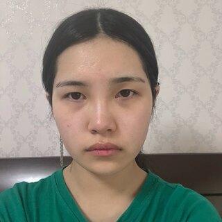 DA美容外科の輪郭・目・鼻・脂肪移植の症例写真(ビフォー)