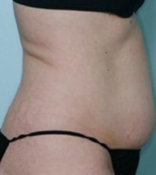 麹町皮ふ科・形成外科クリニックの脂肪溶解注射(カベルライン注射)の症例写真(ビフォー)