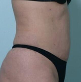 麹町皮ふ科・形成外科クリニックの脂肪溶解注射(カベルライン注射)の症例写真(アフター)