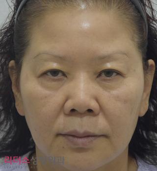 リーダース整形外科の若返り(ミニ切開リフト+NECKリフト+ブローリフト)の症例写真(ビフォー)