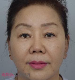 リーダース整形外科の若返り(ミニ切開リフト+NECKリフト+ブローリフト)の症例写真(アフター)