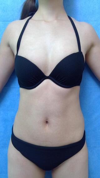 新宿美容外科クリニック 新宿院の脂肪吸引 腹全周 大腿内側 膝内側の症例写真(ビフォー)