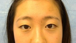 新宿美容外科クリニック 新宿院のスーパーナチュラル埋没法 自由留め 3年保証の症例写真(ビフォー)
