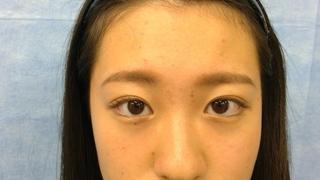 新宿美容外科クリニック 新宿院のスーパーナチュラル埋没法 自由留め 3年保証の症例写真(アフター)