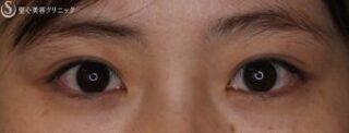 聖心美容クリニック大宮院の【20代女性・二重で可愛いお顔に】 マイクロメソッド+α(術後1ヶ月)の症例写真(アフター)