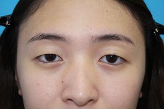 大塚美容形成外科・歯科 大塚本院のフォエバーブリリアント埋没法の症例写真(ビフォー)