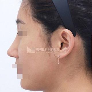メイドヤング美容整形外科の鼻の初手術の症例写真(アフター)