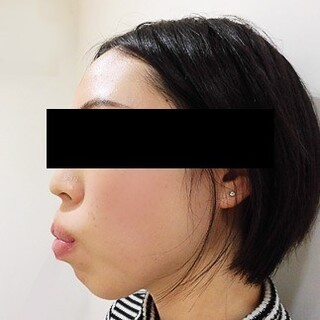 カトレア歯科・美容クリニック(旧クローバー歯科・美容クリニック輪郭整形部門)の上下セットバックの症例写真(ビフォー)