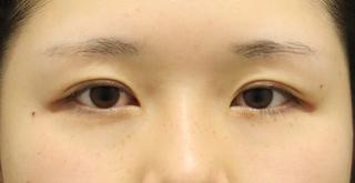 東京イセアクリニック銀座院の【何点留めても一律料金!】イセアの二重埋没法(3年保証付き) の症例写真(アフター)