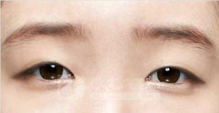 ドドリム整形外科の目埋没法、(斜め上)目頭切開の症例写真(ビフォー)