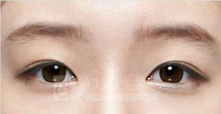 ドドリム整形外科の目埋没法、(斜め上)目頭切開の症例写真(アフター)