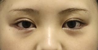 東京イセアクリニック銀座院の【セットプランで10%OFF】全切開法+たれ目形成 の症例写真(アフター)