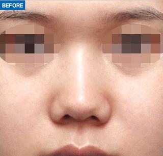 マーブル整形外科の鼻形成の症例写真(ビフォー)