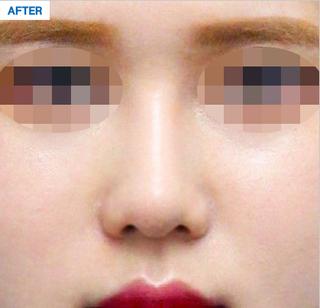 マーブル整形外科の鼻形成の症例写真(アフター)