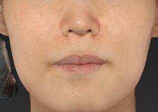 新宿ラクル美容外科クリニック 新宿院の人中短縮の症例写真(ビフォー)
