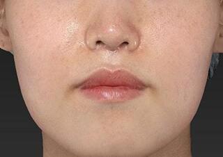新宿ラクル美容外科クリニック 新宿院の人中短縮の症例写真(アフター)