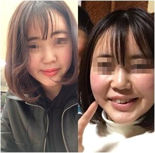 GNG美容外科の鼻再手術の症例写真(ビフォー)