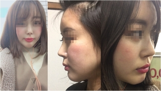 GNG美容外科の鼻再手術の症例写真(アフター)