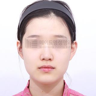 メイドヤング美容整形外科のメタルフリー輪郭3点の症例写真(ビフォー)