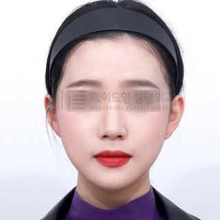 メイドヤング美容整形外科のメタルフリー輪郭3点の症例写真(アフター)